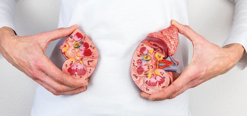 Resultado de imagem para por que pedras nos rins
