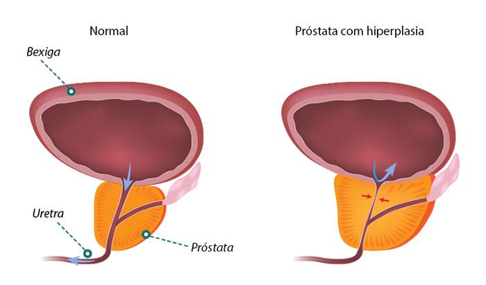 psa próstata elevada